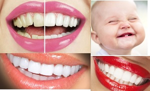 limar dientes