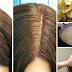 POTATO PEEL: Makatutulong Para Alisin Ang Gray Hair At White Hair Naturally