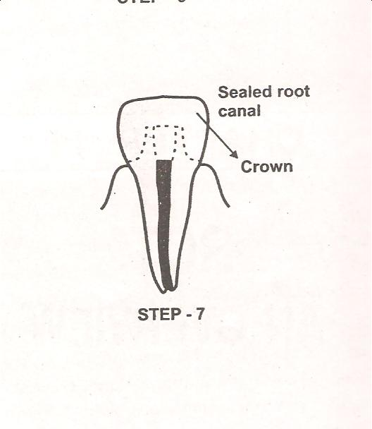 Common Dental Problem And Solution: Root canal treatment