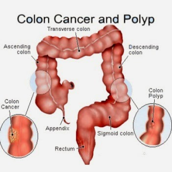 Things You Need to Know About Colorectal Surgery    : 2014