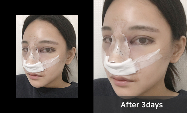짱이뻐! - My World Seems Completely Changed With Korean Plastic Surgery
