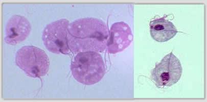 Trichomonas rákos sejt - Paraziták és a rák | TermészetGyógyász Magazin