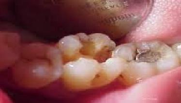 berapa harga biaya tambal gigi berlubang besar parah di puskesmas  dokter gigi rumah sakit geraham depan jakarta laser