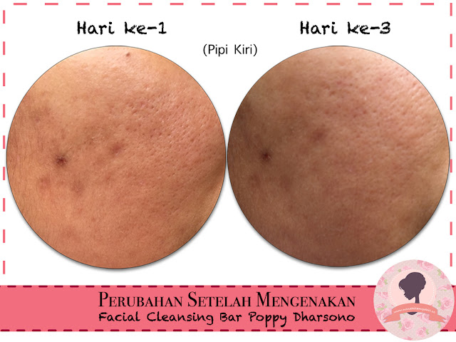 Hasil_Pemakaian_Facial_Cleansing_Bar_Poppy_Dharsono