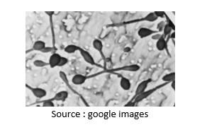 Penjelalsan Proses Perkembangbiakan Bakteri