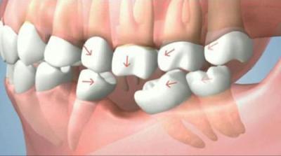 trồng răng cấm bằng phương pháp cấy ghép Implant -4