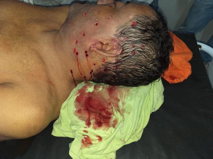 CRIME - Vereador é brutalmente assassinado a tiros no Maranhão
