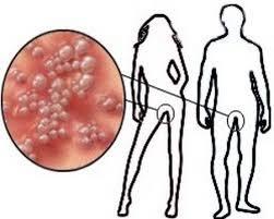 Penderita Sifilis Dan Obatnya