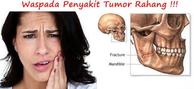 Tumor rahang
