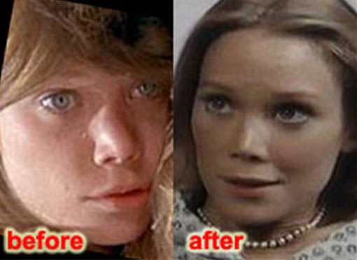Sissy Spacek Plastic Surgery Before And After Nose Job