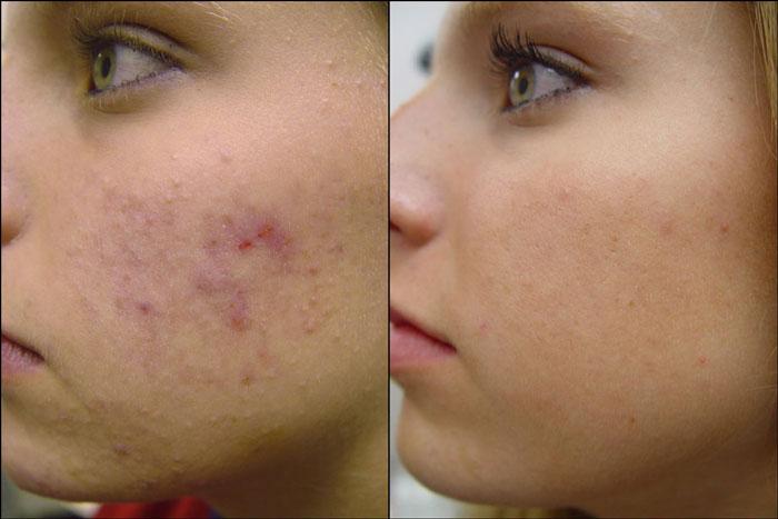 Fibre View Fucicort Antibiotic Cream For Acne