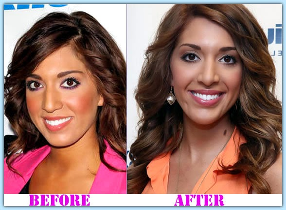 Teen Mom Stars Before and After Plastic Surgery