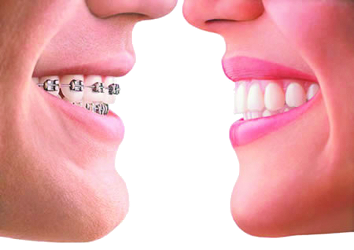 Invisible Braces Options