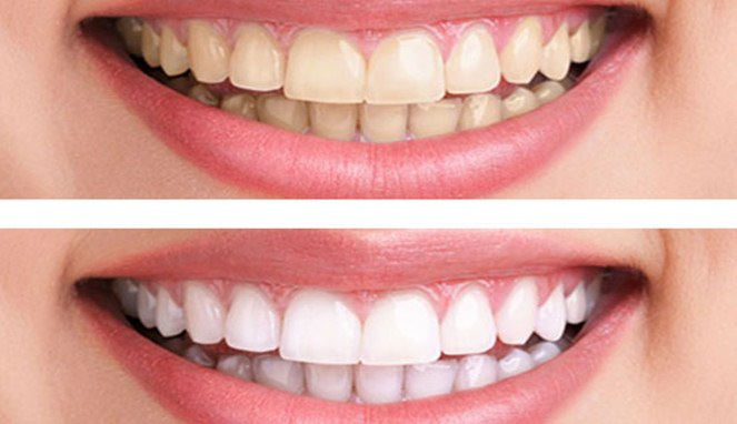 Cara Alami Putihkan Gigi Dalam 5 Menit