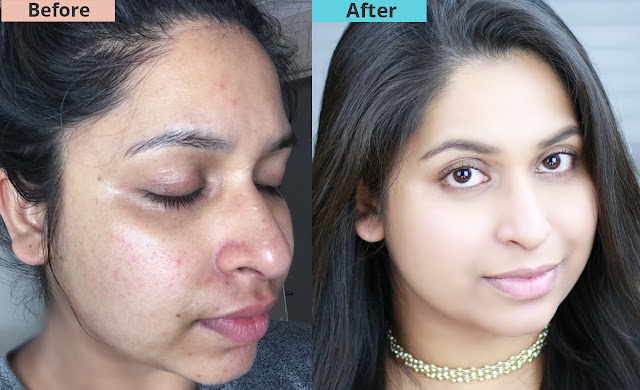 Shahnaz Shimul - How To Get Clear Bright And Acne Free Skin