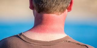Skin cancer from sunburn