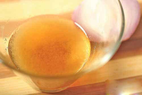 Điều trị rụng tóc hiệu quả bằng hành tây và mật ong bạn thử chưa?