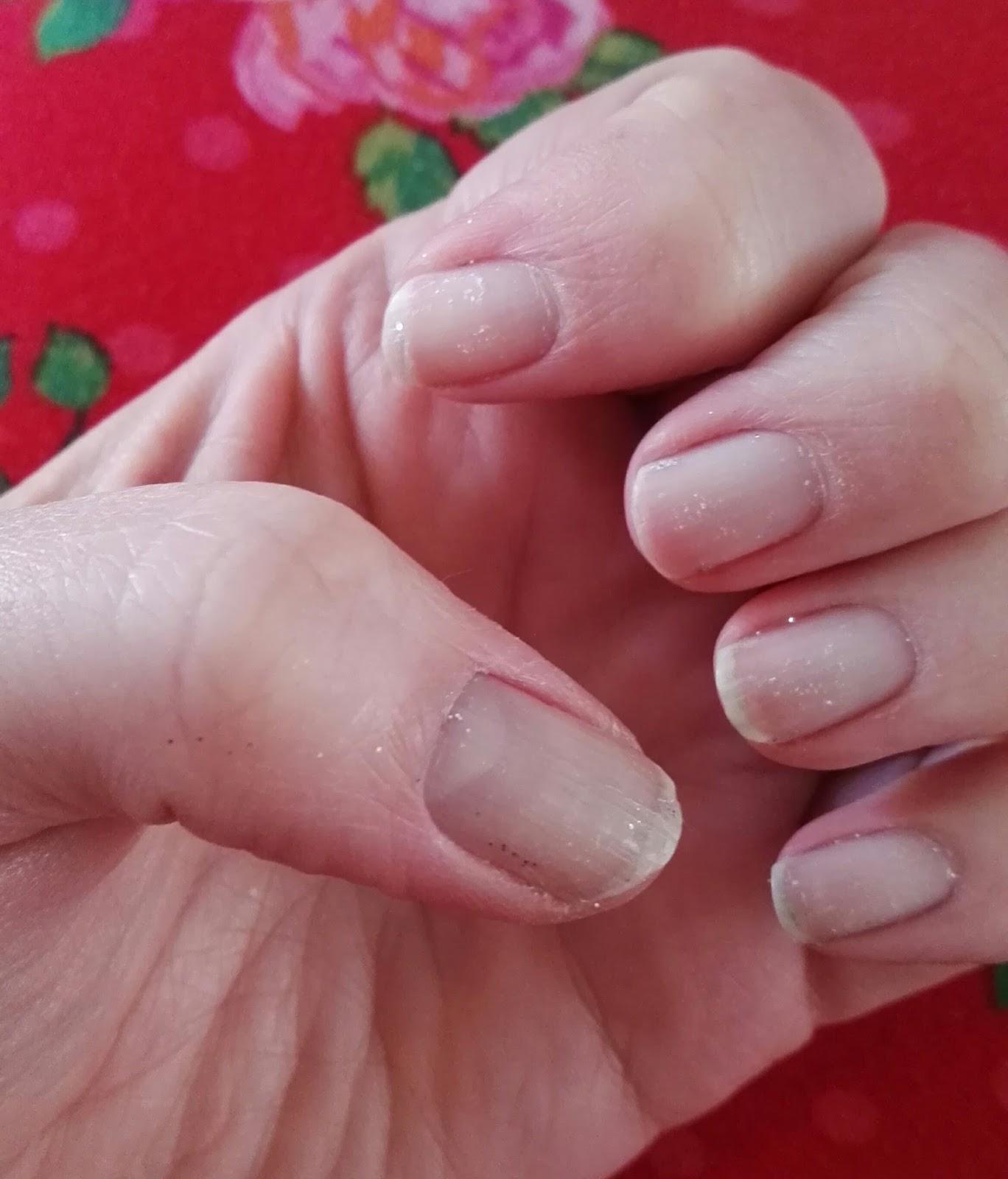 nail repair kruidvat