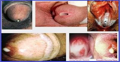 Image Tanda Gejala penyakit saat kencing warna putih bercampur nanah
