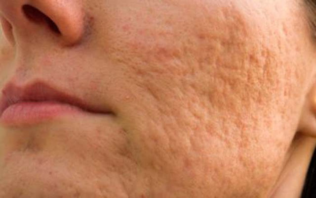 What Causes Acne Scars?