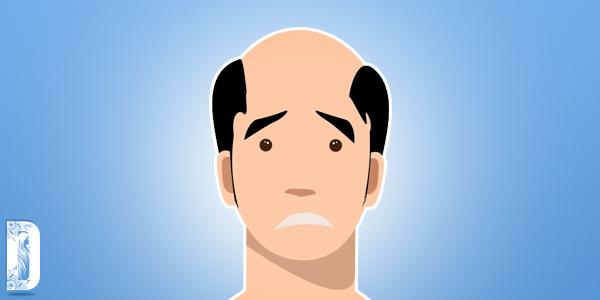 Cara Menumbuhkan Rambut Botak Secara Alami,Cara Menumbuhkan Rambut Botak,penumbuh rambut,Obat Penumbuh Rambut,obat rambut,obat rambut yang bagus,dokter rambut,Obat Penumbuh Rambut Botak