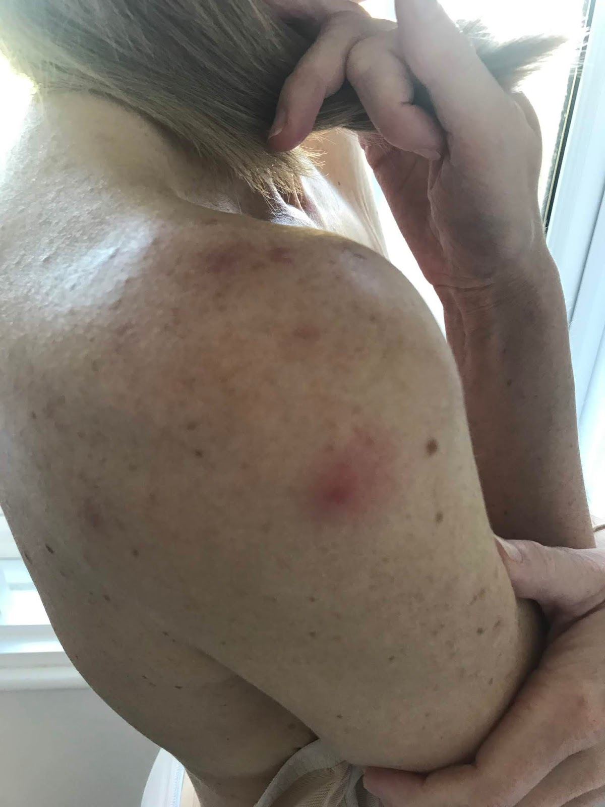Acne on right shoulder before diet and homeopathy