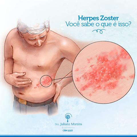 Saiba o que é herpes Zoster  - Drª Juliana Martins (Médica Geriatra)