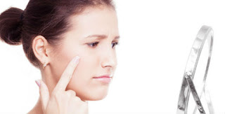 Adult Acne Medication Options