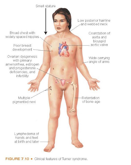 Clinical features of Turner syndrome.