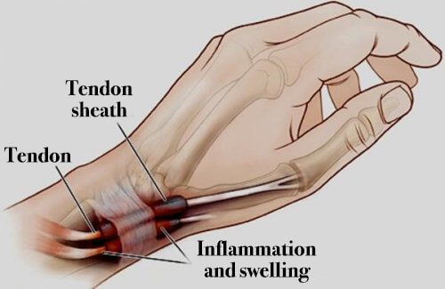 Tenosynovitis: Inflammation Of The Feet And Hands That You Need To Know