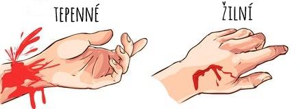 Výsledek obrázku pro krvácení tepenné