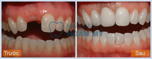 Cách nhận biết răng sứ titan đơn giản