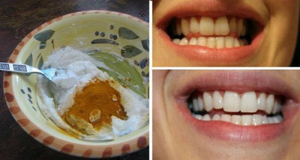 MAGIC FORMULA: Here's How To Whiten Your Teeth In Less Than 5 Minutes! (VIDEO)