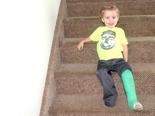 Cruiz's Broken leg