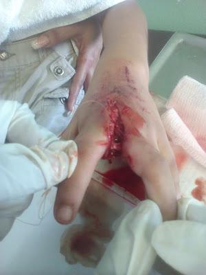 herida en mano