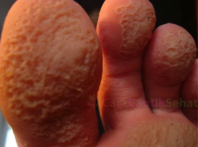 cara mengobati kaki rayapan