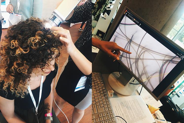 badanie trichoskopowe kręcone włosy