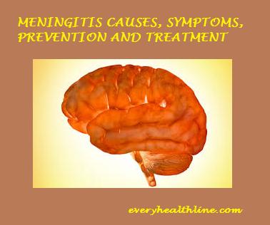 meningitis-causes-symptoms-prevention-and-treatment