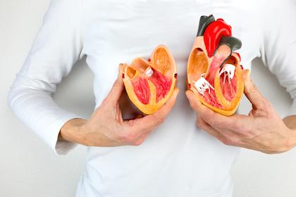 Jantung Koroner- Penyebab, Gejala, Cara Pencegahan dan Pengobatannya