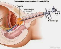 penyakit kanker prostat
