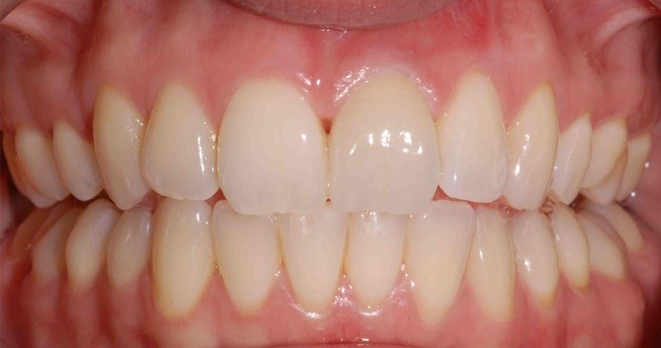gingivite et maladies parodontales maladie des gencives soins dentaires. Black Bedroom Furniture Sets. Home Design Ideas