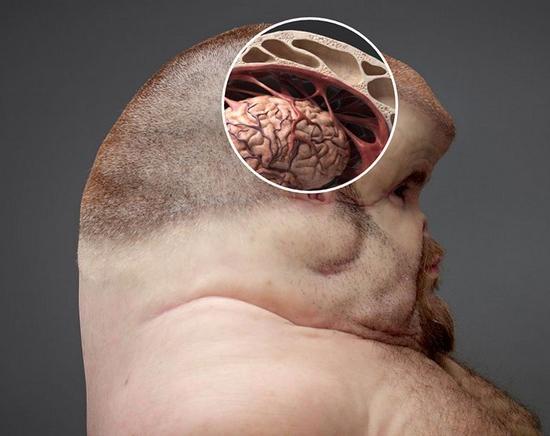 Super-humano a prova de colisões de carros - Cerebro