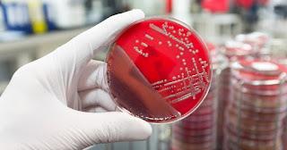 teknik aseptik mikrobiologi
