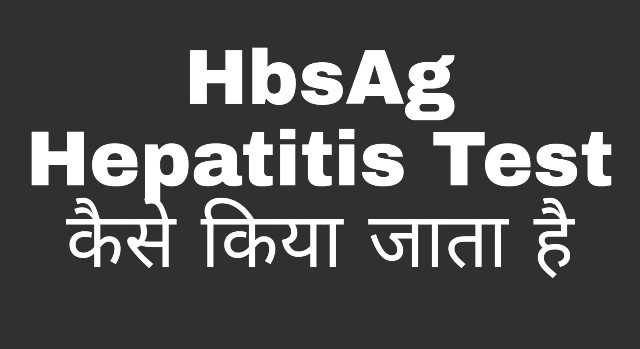 HBsAg Test-Hepatitis B Virus Test कैसे करें ?