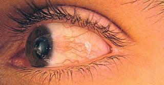 Sakit Mata Bisa Menular