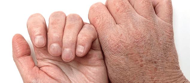 manos secas, agrietadas y con manchas