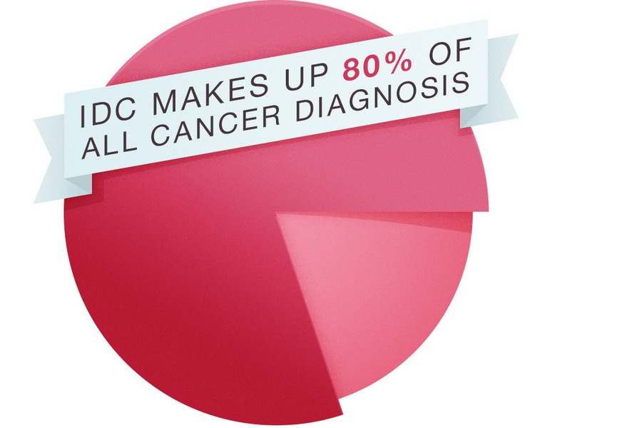 Breast Cancer Ductal Carcinoma Prognosis