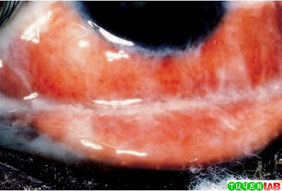 Gonococcal conjunctivitis. Note the copious discharge in response to invasion by Neisseria gonorrhoeae.