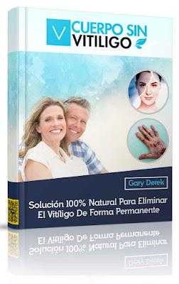 cuerpo-sin-vitiligo