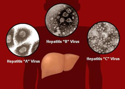 Obat Hepatitis Tradisional, Ampuh Menyembuhkan Hepatitis Secara Alami